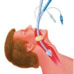 Combitubes - Esophageal Tracheal Airway